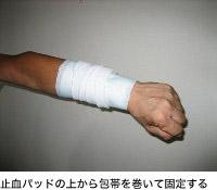 止血パッドの上から包帯を巻いて固定する