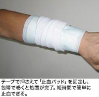 テープで押さえて「止血パッド」を固定し、包帯で巻くと処置が完了。短時間で簡単に止血できる。
